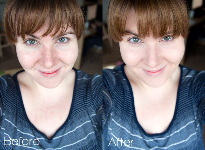 a skin transformation_01